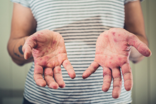 woman hands with measles